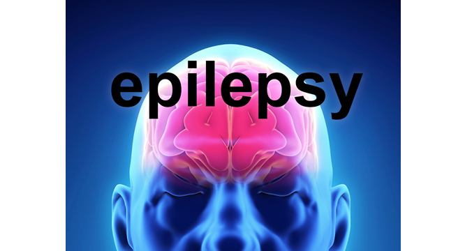 Epilepsy drug increases birth defects risk