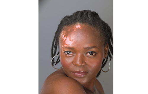 Maduewesi: I drank urine for 4 months over Vitiligo