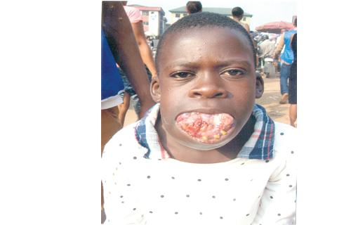 Boy, 16 needs N4.1m support for surgery