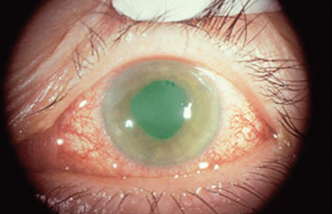 Glaucoma Second Most Common Cause Of Blindness