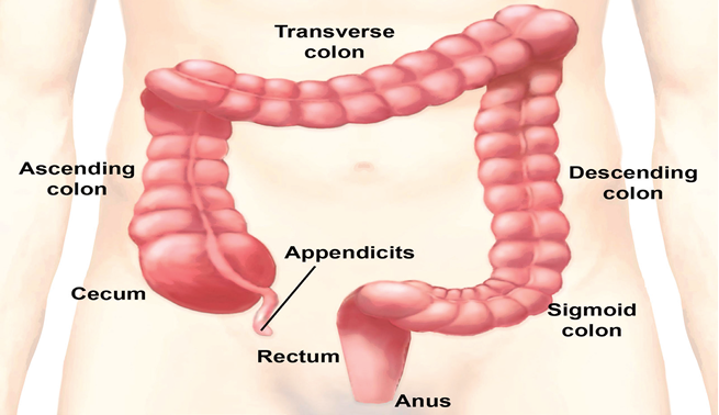 Lifestyle, screening key to tackle colon cancer
