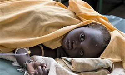 Cholera kills 186, spreads to 16 states -NCDC